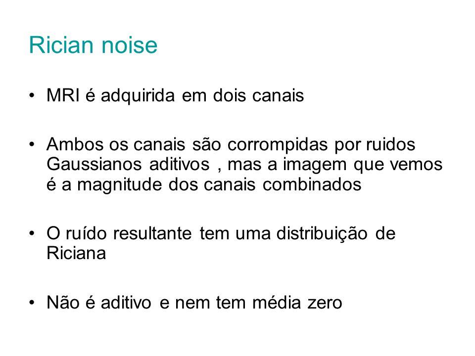 Rician noise MRI é adquirida em dois canais Ambos os canais são corrompidas por ruidos Gaussianos aditivos, mas a imagem que vemos é a magnitude dos c