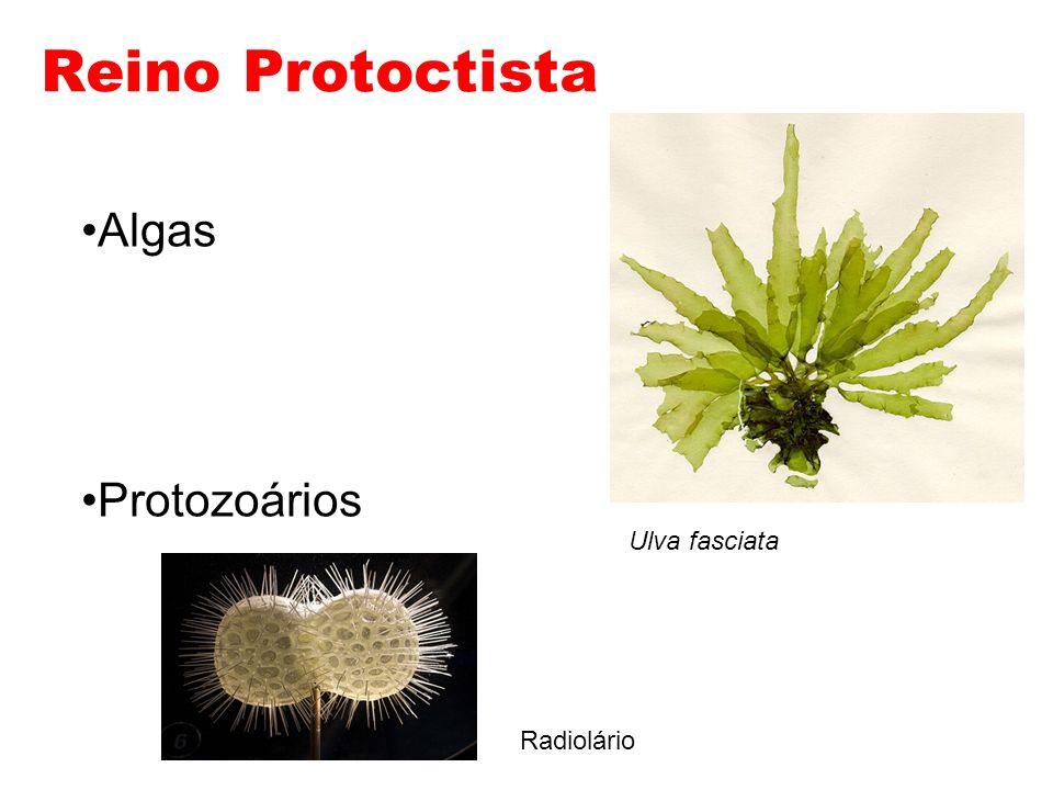 Leishmanioses Leishmania brasiliensis – Leishmaniose tegumentar - mucosas e pele.