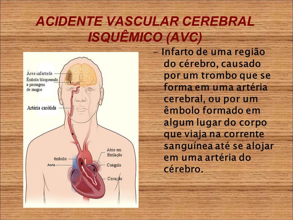 ACIDENTE VASCULAR CEREBRAL ISQUÊMICO (AVC) - Infarto de uma região do cérebro, causado por um trombo que se forma em uma artéria cerebral, ou por um êmbolo formado em algum lugar do corpo que viaja na corrente sanguínea até se alojar em uma artéria do cérebro.