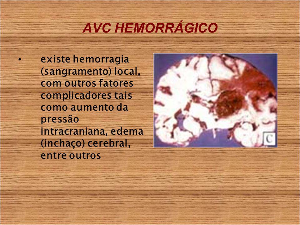 AVC HEMORRÁGICO existe hemorragia (sangramento) local, com outros fatores complicadores tais como aumento da pressão intracraniana, edema (inchaço) cerebral, entre outros
