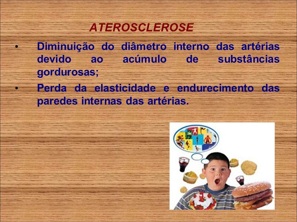 ATEROSCLEROSE Obstrução total das artérias impede a oxigenação e nutrição das células e tecidos, o que pode provocar a morte.