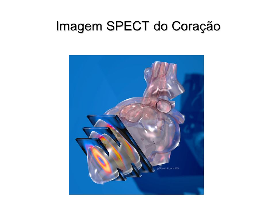 Imagem SPECT do Coração