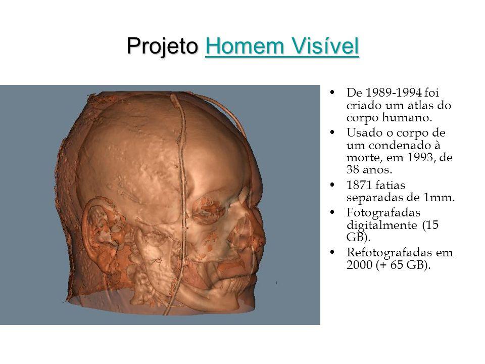 Projeto Homem Visível Homem VisívelHomem Visível De 1989-1994 foi criado um atlas do corpo humano. Usado o corpo de um condenado à morte, em 1993, de