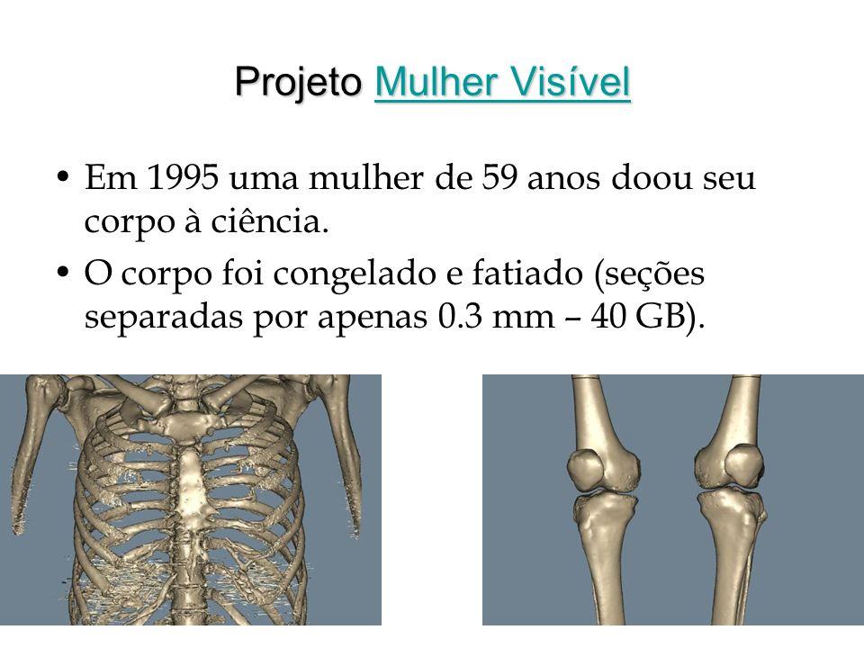 Projeto Mulher Visível Mulher VisívelMulher Visível Em 1995 uma mulher de 59 anos doou seu corpo à ciência. O corpo foi congelado e fatiado (seções se