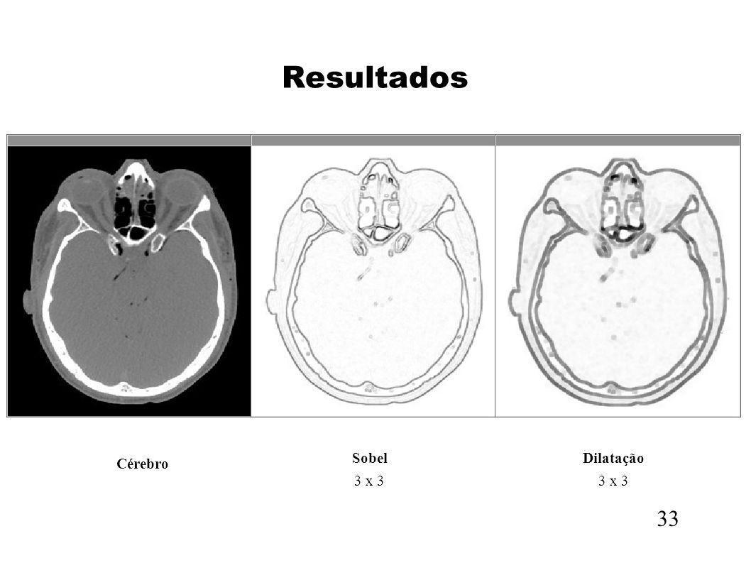 Resultados 33 Sobel 3 x 3 Dilatação 3 x 3 Cérebro