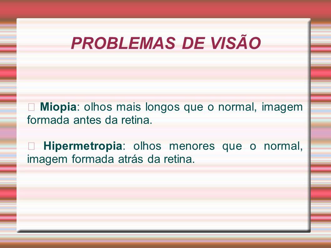 PROBLEMAS DE VISÃO Miopia: olhos mais longos que o normal, imagem formada antes da retina. Hipermetropia: olhos menores que o normal, imagem formada a