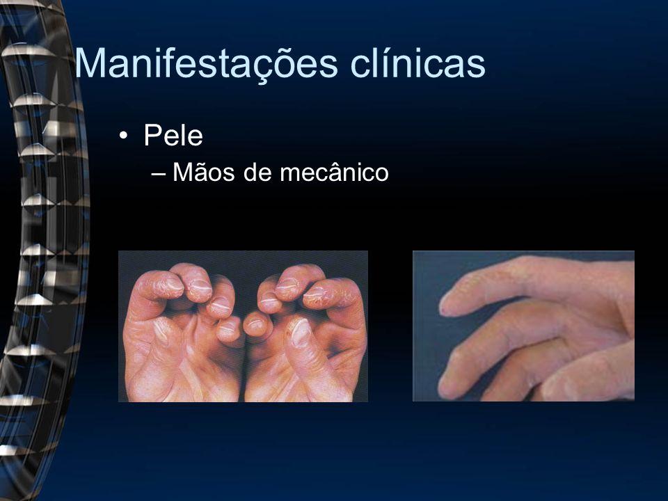 Manifestações clínicas Pele –Mãos de mecânico