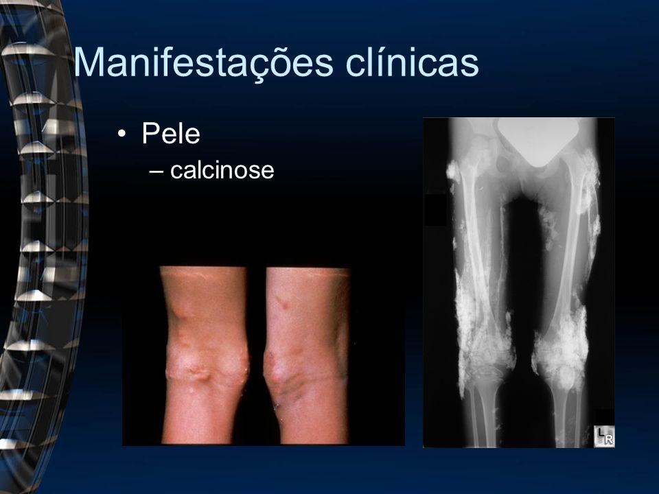 Manifestações clínicas Pele –calcinose
