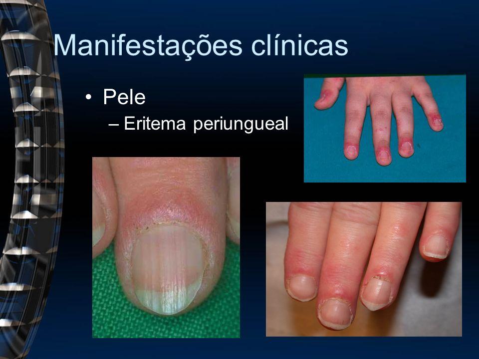 Manifestações clínicas Pele –Eritema periungueal