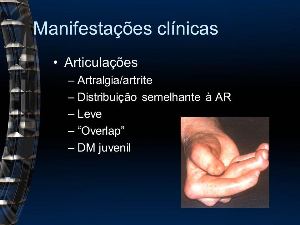Manifestações clínicas Articulações –Artralgia/artrite –Distribuição semelhante à AR –Leve –Overlap –DM juvenil