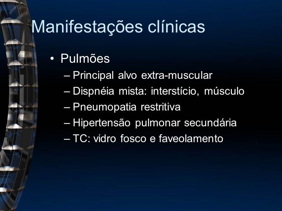 Manifestações clínicas Pulmões –Principal alvo extra-muscular –Dispnéia mista: interstício, músculo –Pneumopatia restritiva –Hipertensão pulmonar secundária –TC: vidro fosco e faveolamento