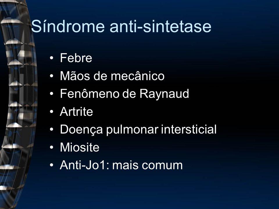 Síndrome anti-sintetase Febre Mãos de mecânico Fenômeno de Raynaud Artrite Doença pulmonar intersticial Miosite Anti-Jo1: mais comum