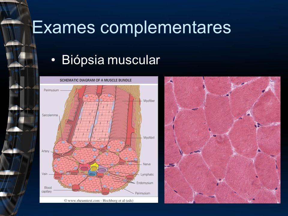 Exames complementares Biópsia muscular