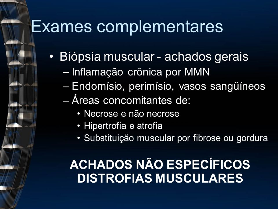 Exames complementares Biópsia muscular - achados gerais –Inflamação crônica por MMN –Endomísio, perimísio, vasos sangüíneos –Áreas concomitantes de: Necrose e não necrose Hipertrofia e atrofia Substituição muscular por fibrose ou gordura ACHADOS NÃO ESPECÍFICOS DISTROFIAS MUSCULARES