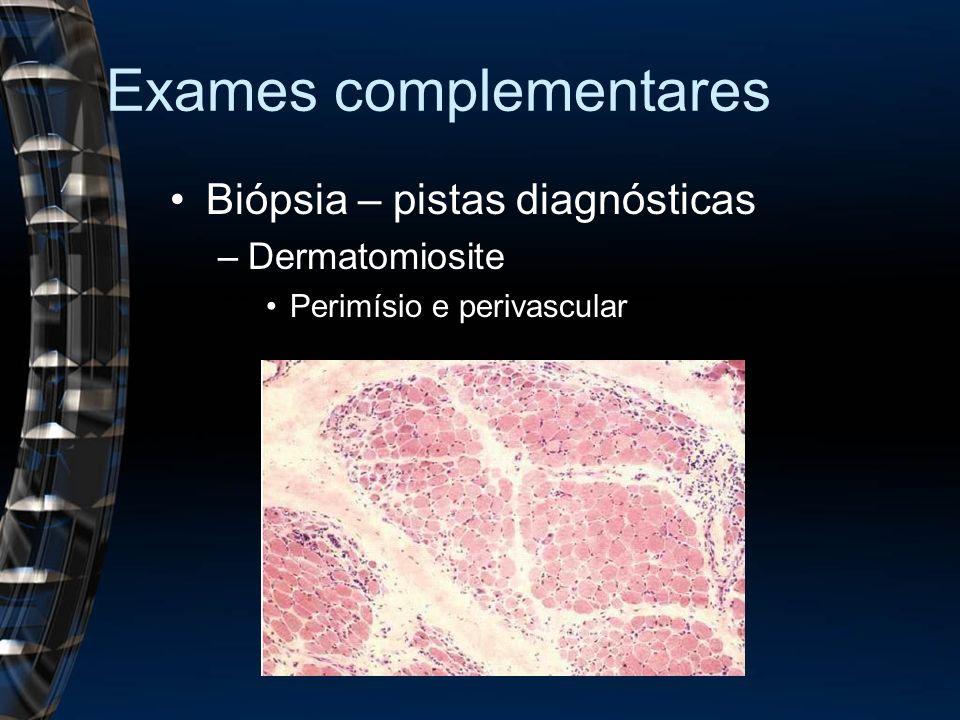 Exames complementares Biópsia – pistas diagnósticas –Dermatomiosite Perimísio e perivascular