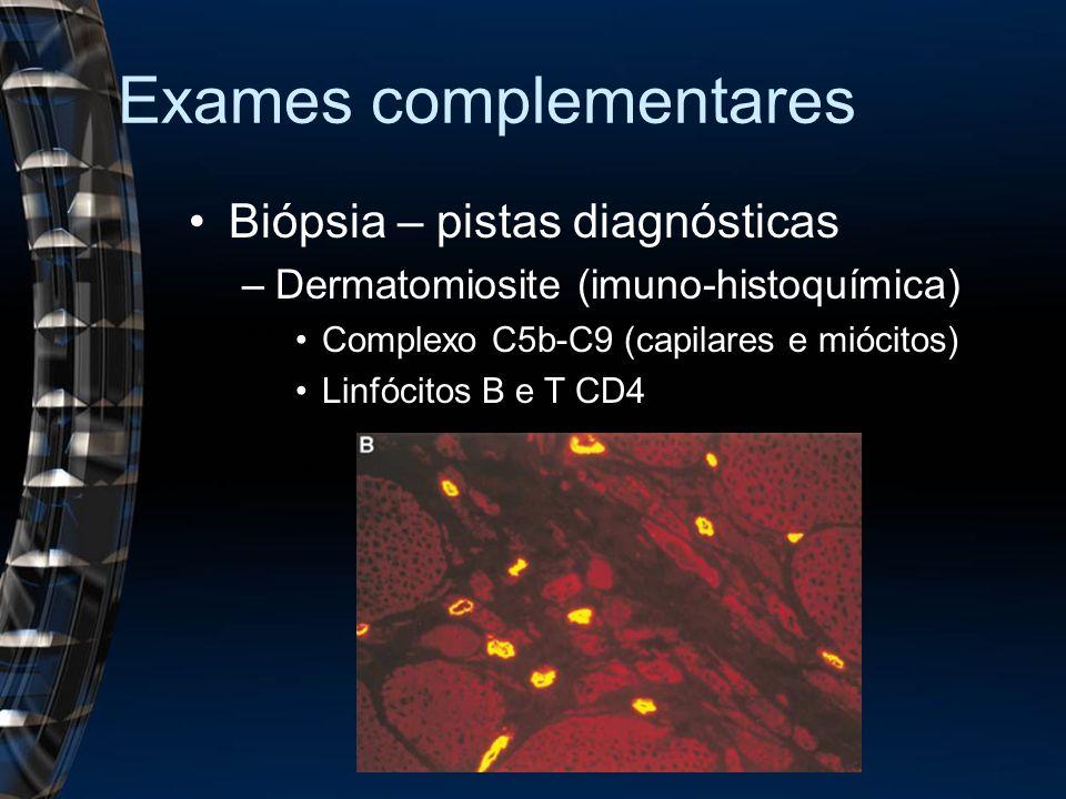Exames complementares Biópsia – pistas diagnósticas –Dermatomiosite (imuno-histoquímica) Complexo C5b-C9 (capilares e miócitos) Linfócitos B e T CD4