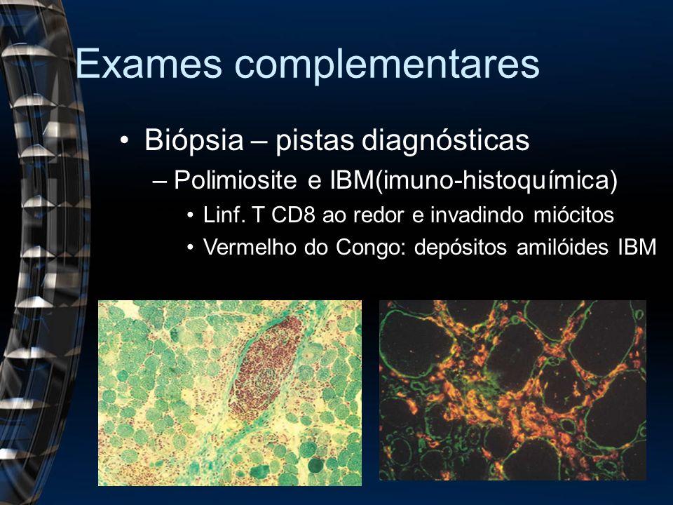 Exames complementares Biópsia – pistas diagnósticas –Polimiosite e IBM(imuno-histoquímica) Linf. T CD8 ao redor e invadindo miócitos Vermelho do Congo