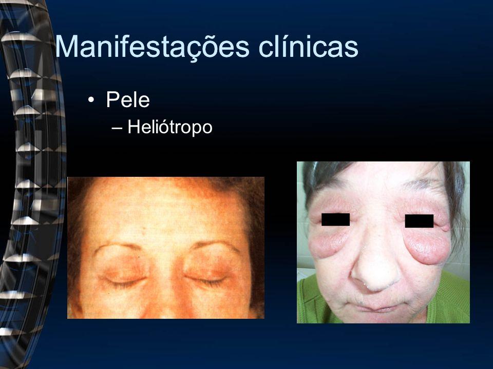 Manifestações clínicas Pele –Heliótropo