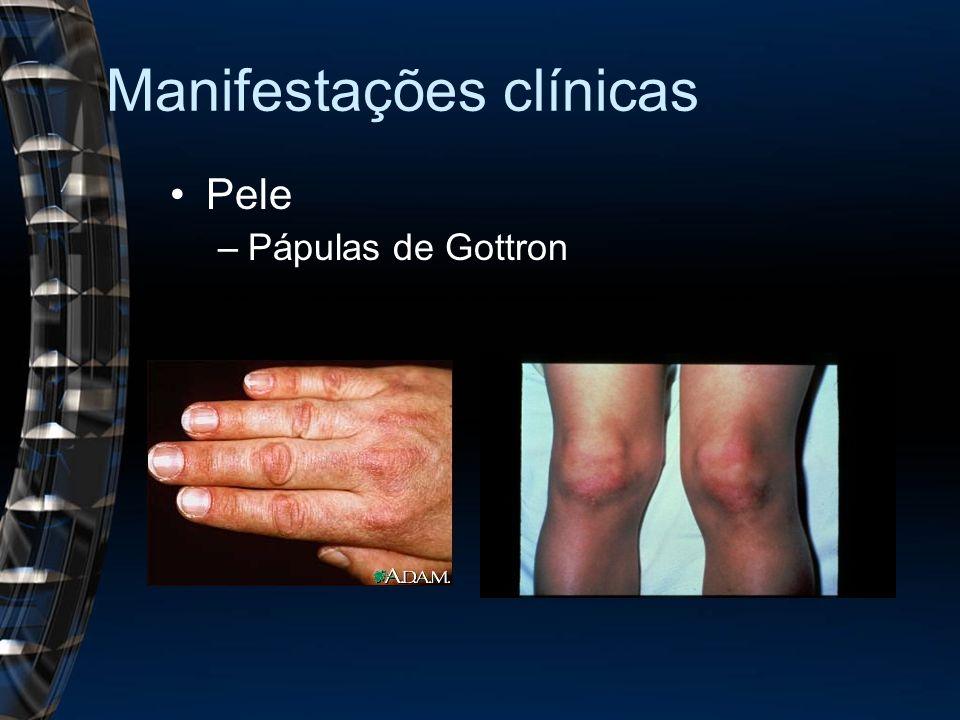 Manifestações clínicas Pele –Pápulas de Gottron