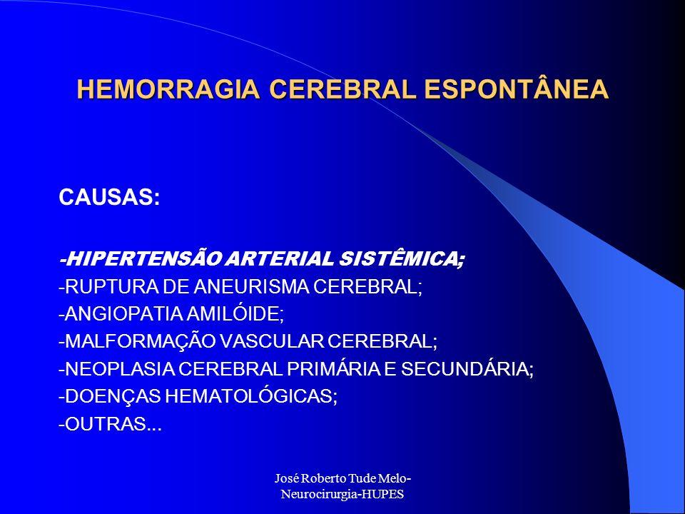 José Roberto Tude Melo- Neurocirurgia-HUPES HEMORRAGIA CEREBRAL ESPONTÂNEA CAUSAS: -HIPERTENSÃO ARTERIAL SISTÊMICA; -RUPTURA DE ANEURISMA CEREBRAL; -A