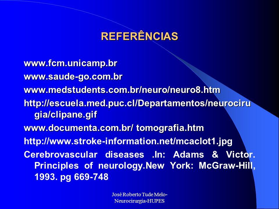 José Roberto Tude Melo- Neurocirurgia-HUPES REFERÊNCIAS www.fcm.unicamp.brwww.saude-go.com.brwww.medstudents.com.br/neuro/neuro8.htm http://escuela.me