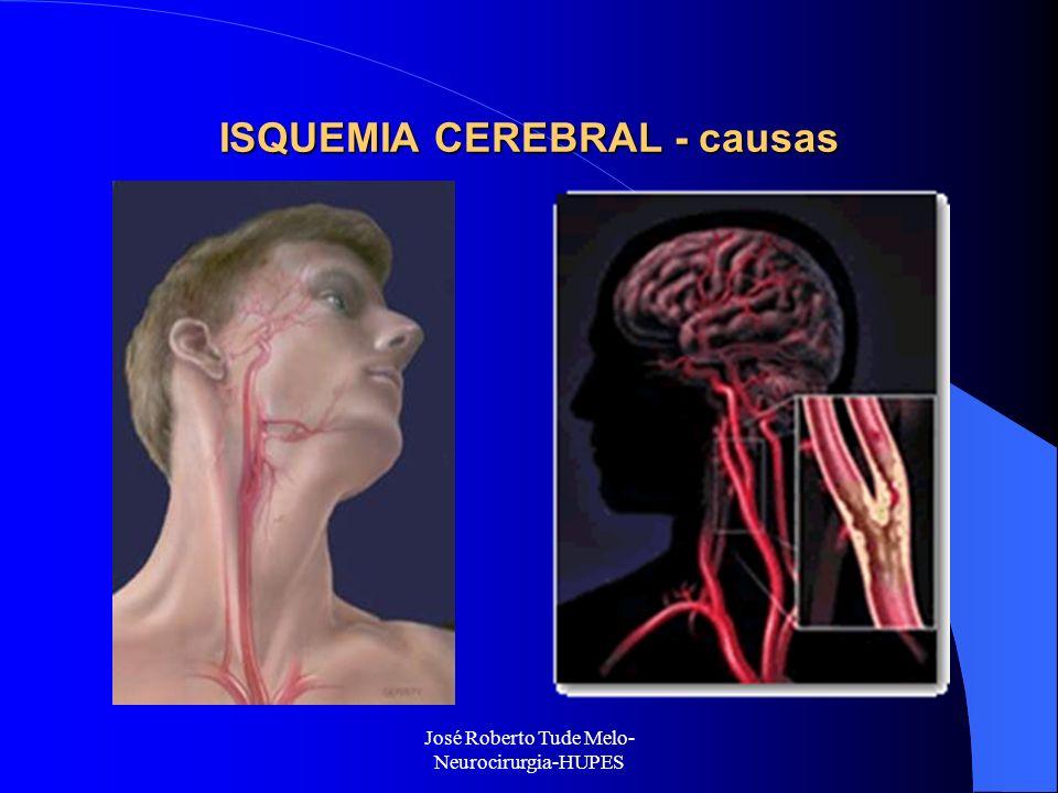 José Roberto Tude Melo- Neurocirurgia-HUPES ISQUEMIA CEREBRAL - causas