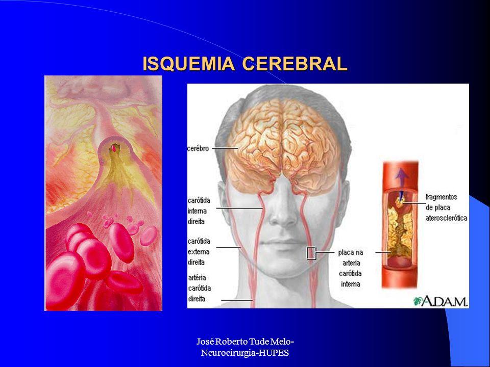 José Roberto Tude Melo- Neurocirurgia-HUPES ISQUEMIA CEREBRAL