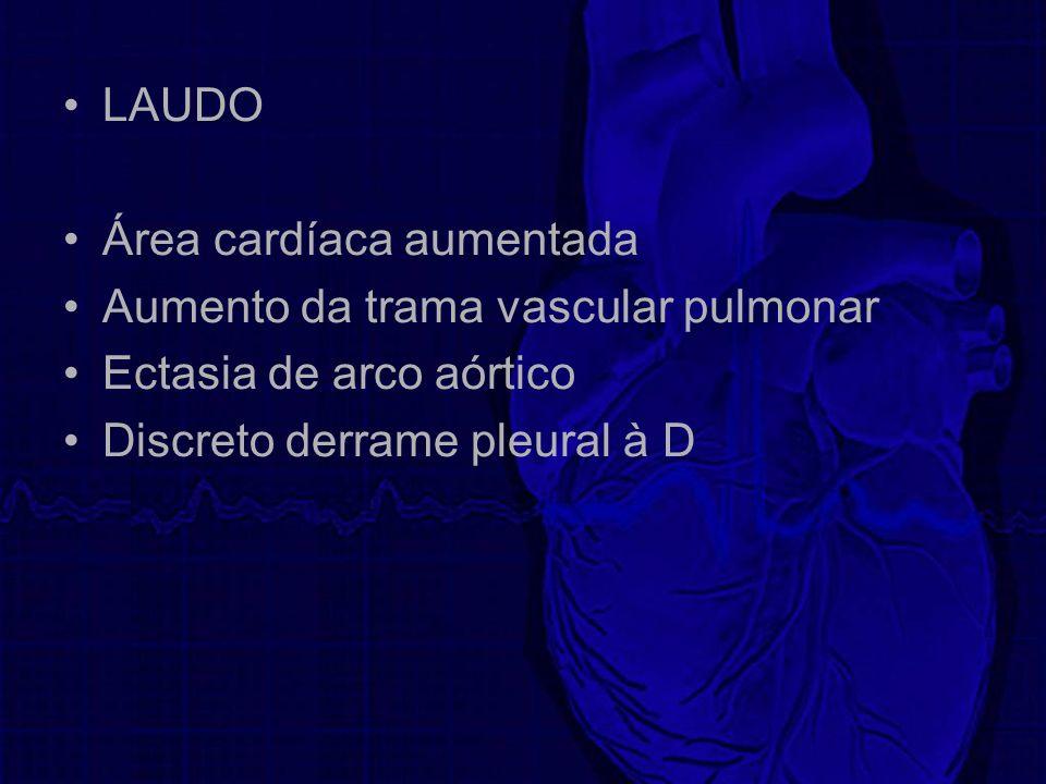 LAUDO Área cardíaca aumentada Aumento da trama vascular pulmonar Ectasia de arco aórtico Discreto derrame pleural à D