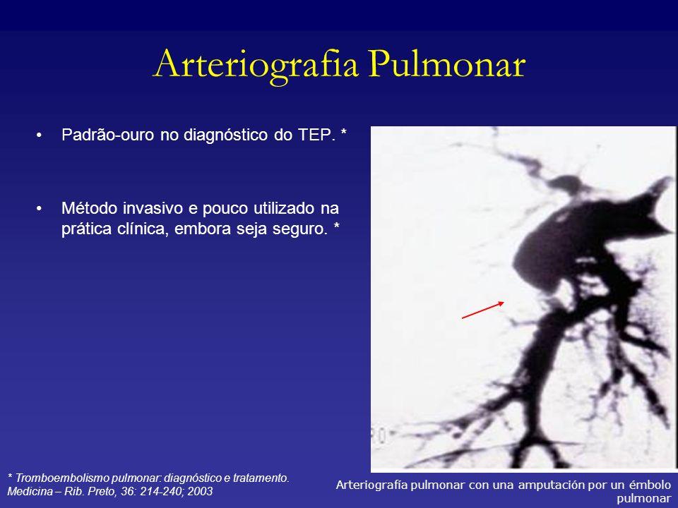 Arteriografia Pulmonar Padrão-ouro no diagnóstico do TEP. * Método invasivo e pouco utilizado na prática clínica, embora seja seguro. * Arteriografía