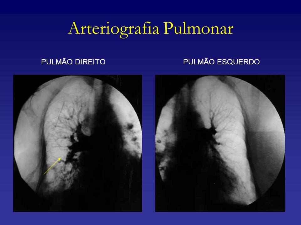 Arteriografia Pulmonar PULMÃO DIREITOPULMÃO ESQUERDO