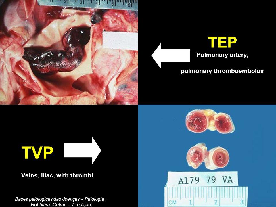 Heparina não-fracionada (HNF) (padrão) Administração endovenosa, com uma dose de ataque seguida de infusão contínua.