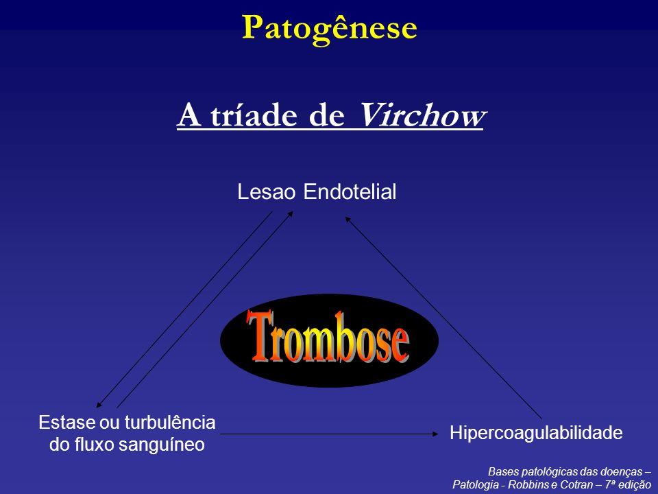 Arteriografia Pulmonar Padrão-ouro no diagnóstico do TEP.