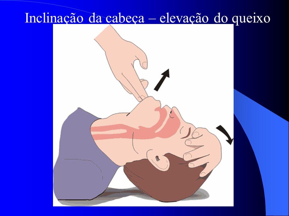 3. Colocar a vítima em Decúbito dorsal 4. Desobstruir vias aéreas a causa mais comum de obstrução é a lingua
