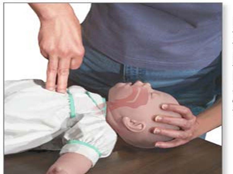 RCP em Crianças (1 a 8 anos) 1) Se você estiver sozinho deve executar RCP durante um minuto antes de ligar 192. 2) Use uma só mão para efetuar as comp