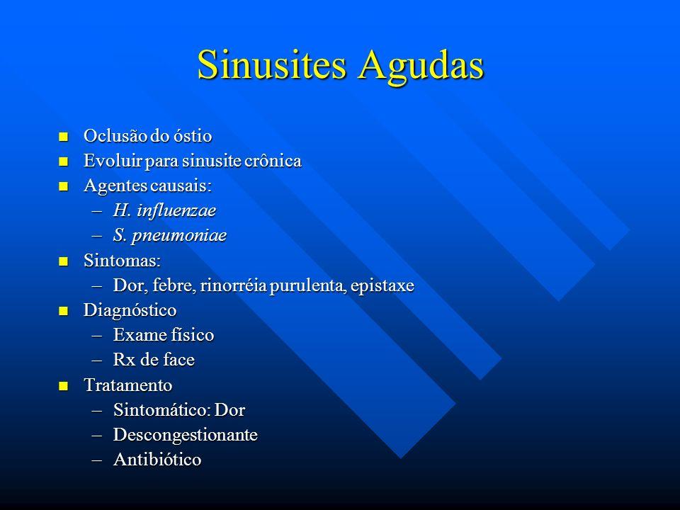 Sinusites Agudas Oclusão do óstio Oclusão do óstio Evoluir para sinusite crônica Evoluir para sinusite crônica Agentes causais: Agentes causais: –H. i