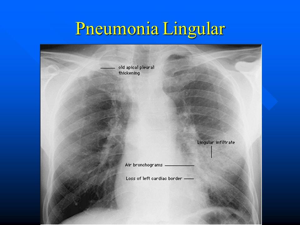 Pneumonia Lingular