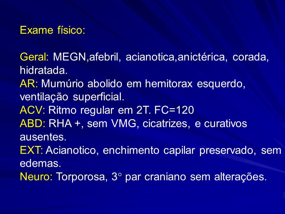 Exame físico: Geral: MEGN,afebril, acianotica,anictérica, corada, hidratada. AR: Mumúrio abolido em hemitorax esquerdo, ventilação superficial. ACV: R