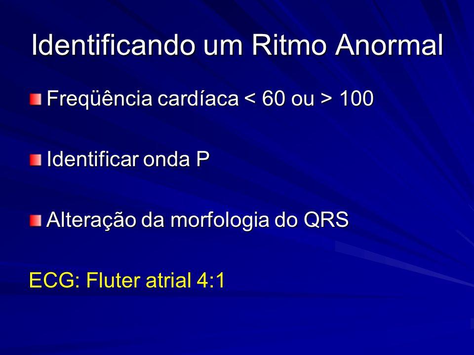 Identificando um Ritmo Anormal Freqüência cardíaca 100 Identificar onda P Alteração da morfologia do QRS ECG: Fluter atrial 4:1