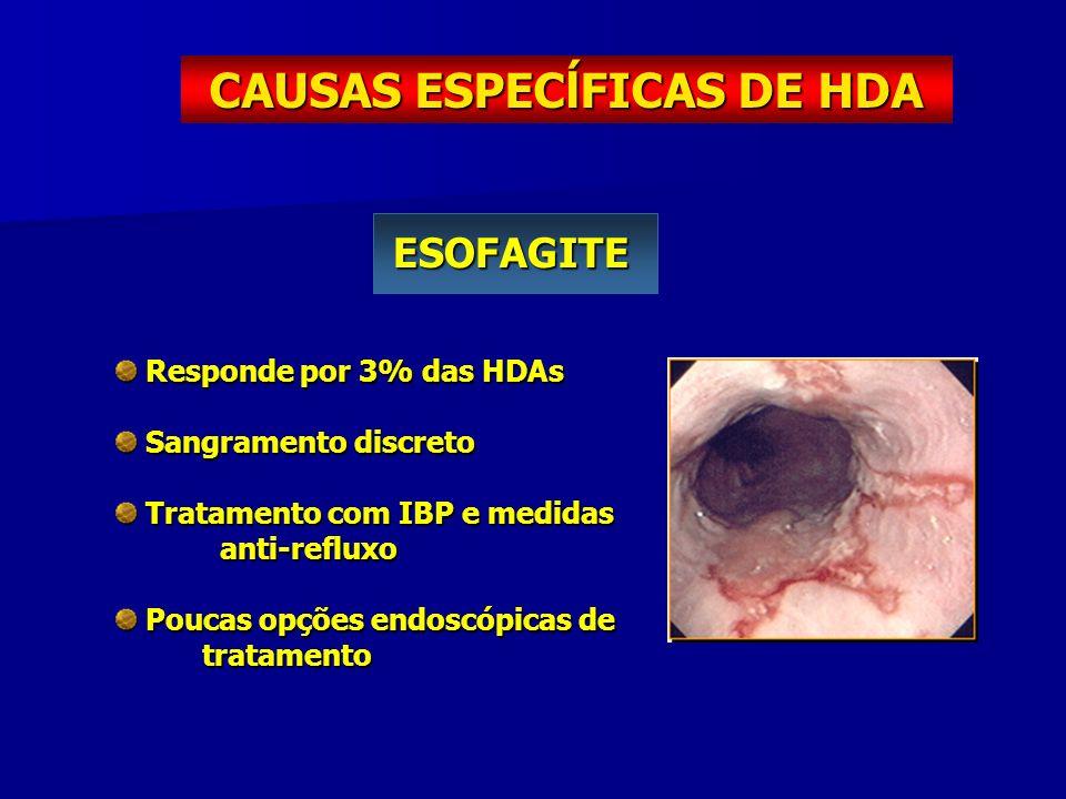 CAUSAS ESPECĺFICAS DE HDA ESOFAGITE Responde por 3% das HDAs Responde por 3% das HDAs Sangramento discreto Sangramento discreto Tratamento com IBP e m