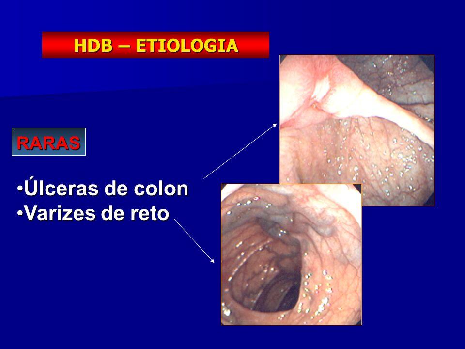 RARAS Úlceras de colonÚlceras de colon Varizes de retoVarizes de reto