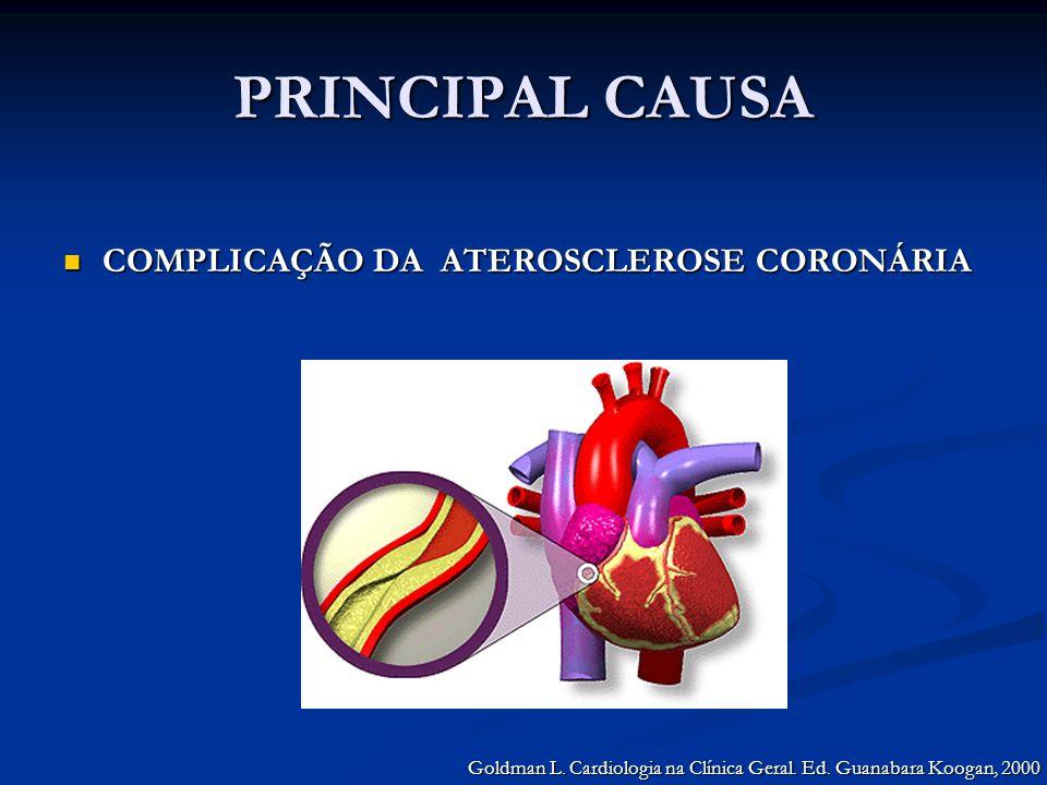 PRINCIPAL CAUSA COMPLICAÇÃO DA ATEROSCLEROSE CORONÁRIA COMPLICAÇÃO DA ATEROSCLEROSE CORONÁRIA Goldman L. Cardiologia na Clínica Geral. Ed. Guanabara K