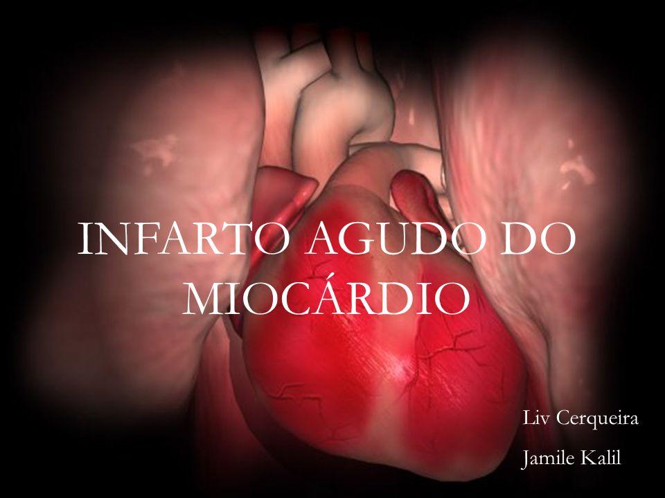 INFARTO AGUDO DO MIOCÁRDIO Liv Cerqueira Jamile Kalil
