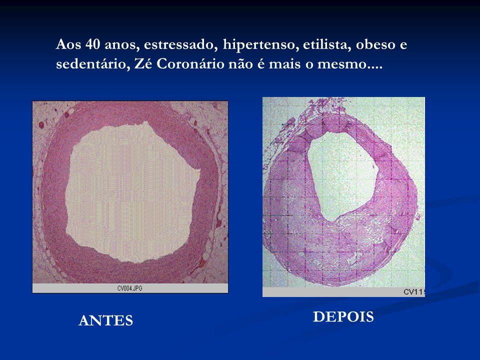 Aos 40 anos, estressado, hipertenso, etilista, obeso e sedentário, Zé Coronário não é mais o mesmo.... ANTES DEPOIS