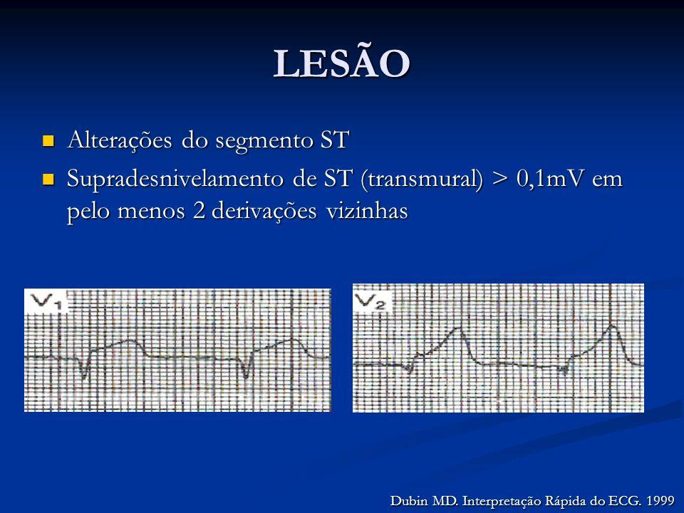 LESÃO Alterações do segmento ST Alterações do segmento ST Supradesnivelamento de ST (transmural) > 0,1mV em pelo menos 2 derivações vizinhas Supradesn