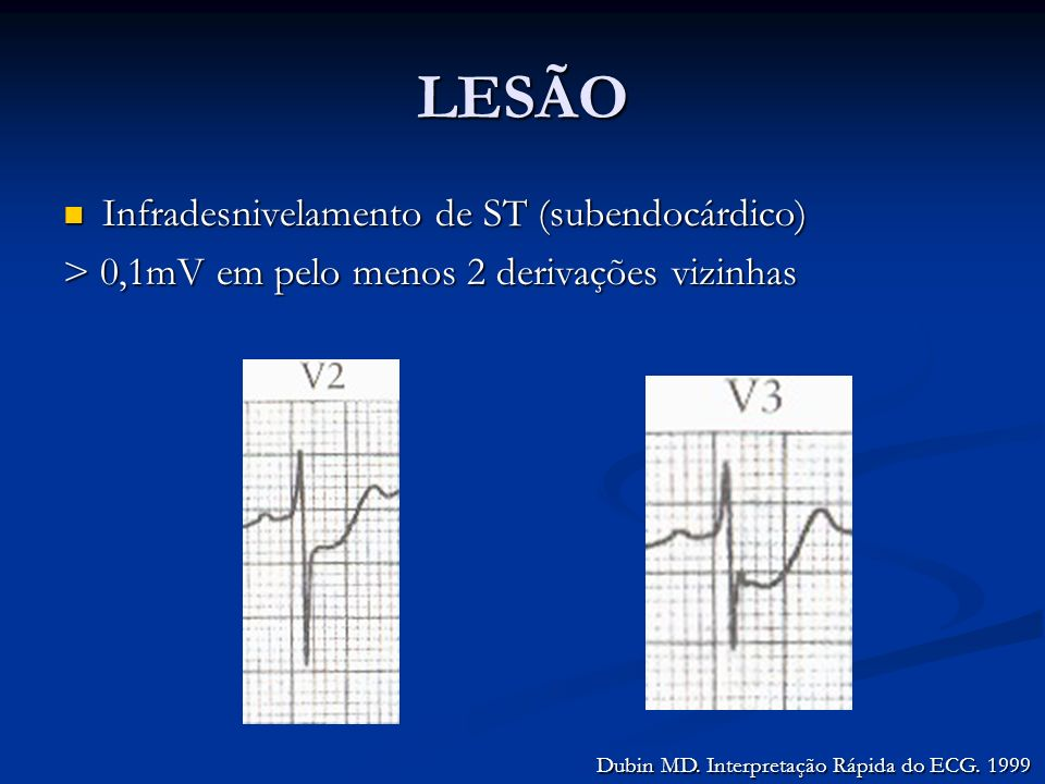 LESÃO Infradesnivelamento de ST (subendocárdico) Infradesnivelamento de ST (subendocárdico) > 0,1mV em pelo menos 2 derivações vizinhas Dubin MD. Inte