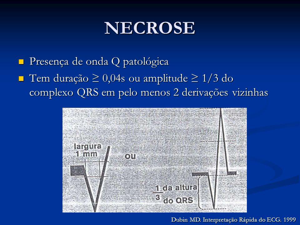 NECROSE Presença de onda Q patológica Presença de onda Q patológica Tem duração 0,04s ou amplitude 1/3 do complexo QRS em pelo menos 2 derivações vizi