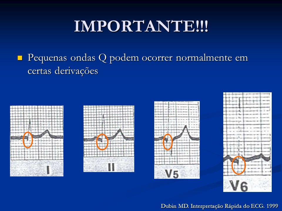 IMPORTANTE!!! Pequenas ondas Q podem ocorrer normalmente em certas derivações Pequenas ondas Q podem ocorrer normalmente em certas derivações Dubin MD