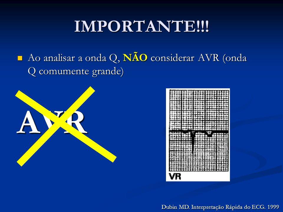 IMPORTANTE!!! Ao analisar a onda Q, NÃO considerar AVR (onda Q comumente grande) Ao analisar a onda Q, NÃO considerar AVR (onda Q comumente grande)AVR