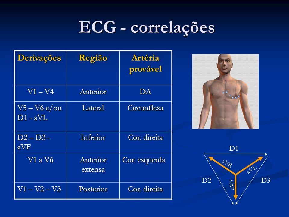 ECG - correlações ECG - correlações DerivaçõesRegião Artéria provável V1 – V4 AnteriorDA V5 – V6 e/ou D1 - aVL LateralCircunflexa D2 – D3 - aVF Inferi