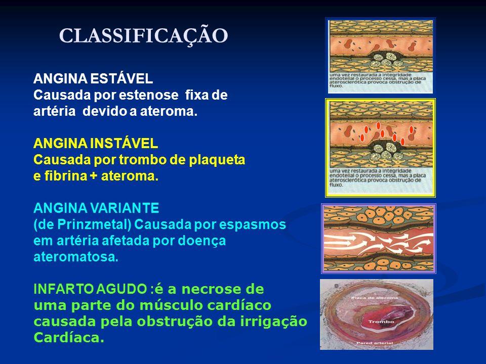 ANGINA ESTÁVEL Causada por estenose fixa de artéria devido a ateroma. ANGINA INSTÁVEL Causada por trombo de plaqueta e fibrina + ateroma. ANGINA VARIA